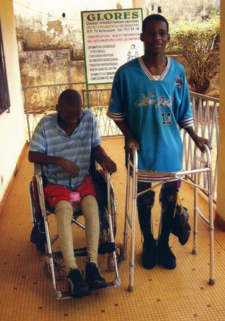 cameroon.glores. Disabled youths undergoing treatment