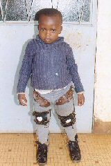 cameroon.glores. Child with leg splints